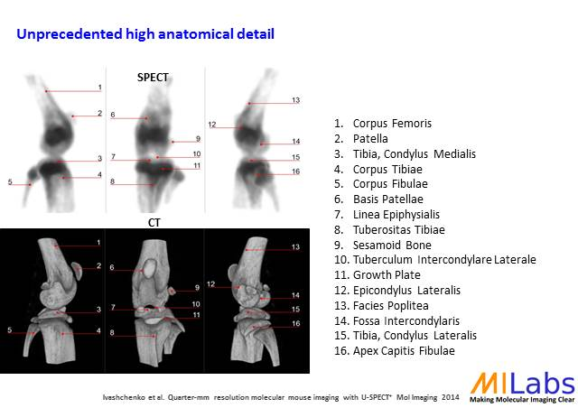 01200-Knee-Bone-High-Resolution-MILabs-PET,SPECT,CT,OI