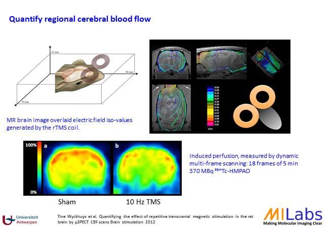 02400-Brain-Stimulation-MILabs-PET,SPECT,CT,OI