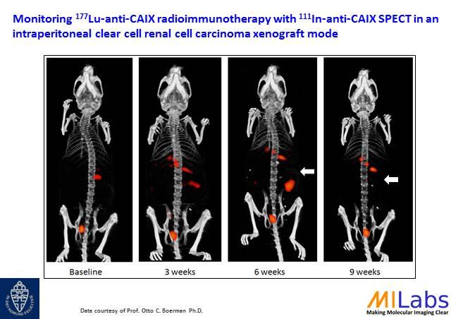 04600-Tumor-Treatment-Longi