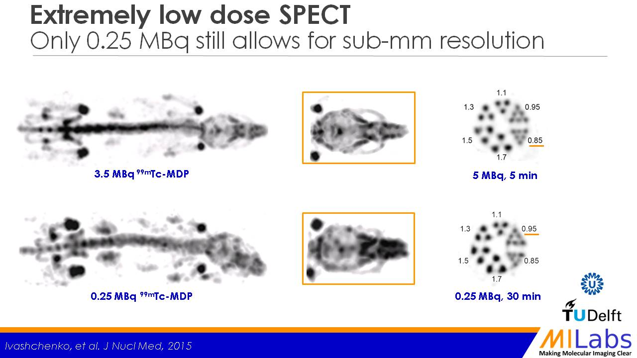 Extremely low dose SPECT 83