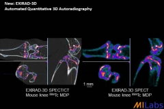 00400-EXIRAD-Bone-MILabs-PET,SPECT,CT,OI