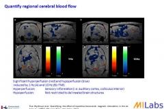 03400-Brain-Stimulation-MILabs-PET,SPECT,CT,OI