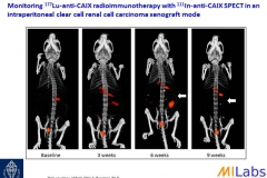 04600-Tumor-Treatment-Longi