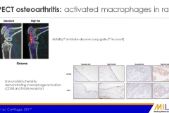 SPECT osteoarthritis - activated macrophages in rat 83