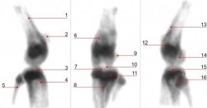 Figure 5B U-SPECT high resolution SPECT