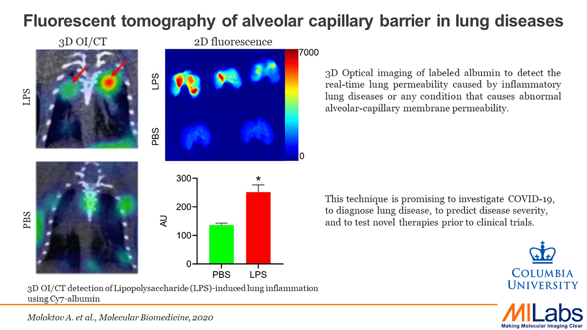 3D optical tomography - lung imaging from Columbia University