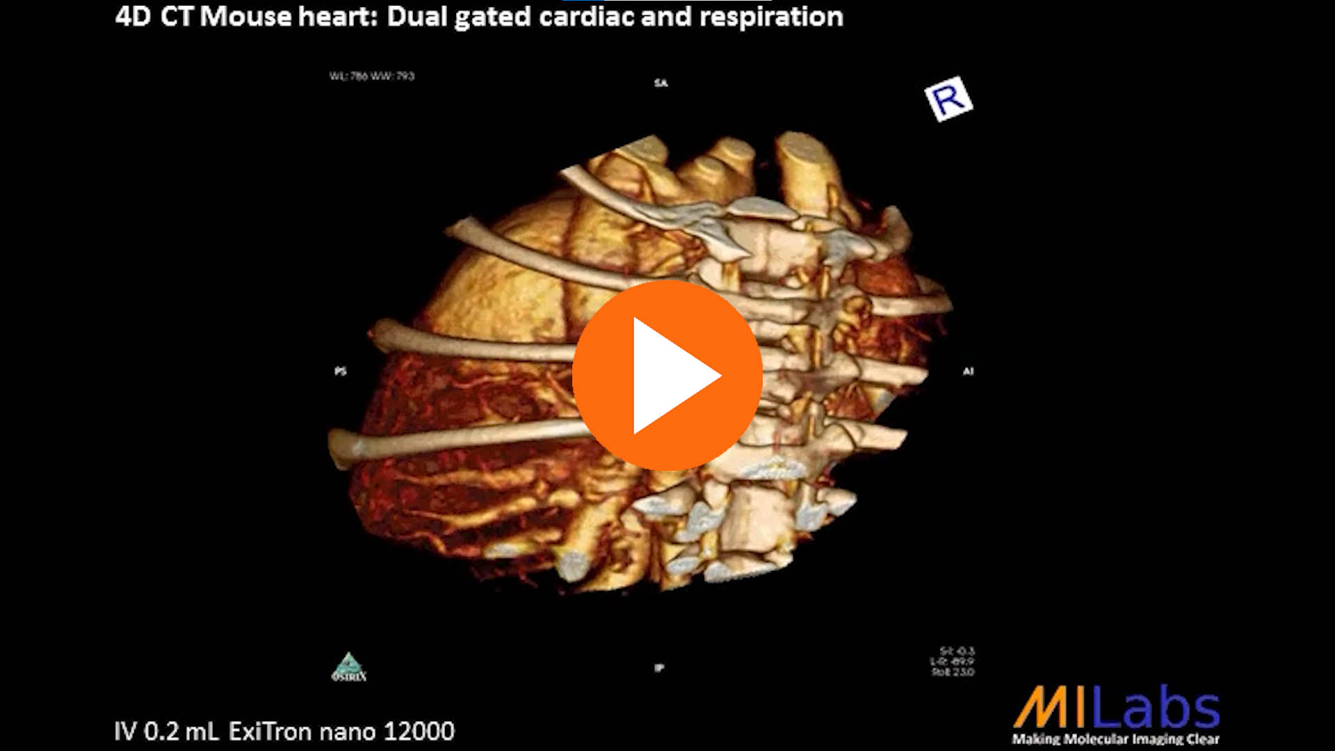 4D micro CT mouse heart dual gated cardiac and respiration