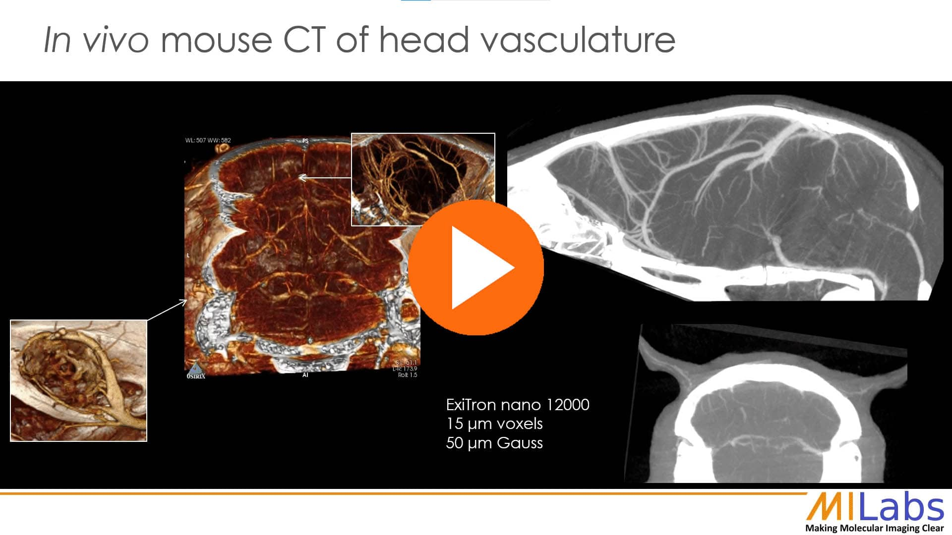 in vivo mouse CT of head vasculature