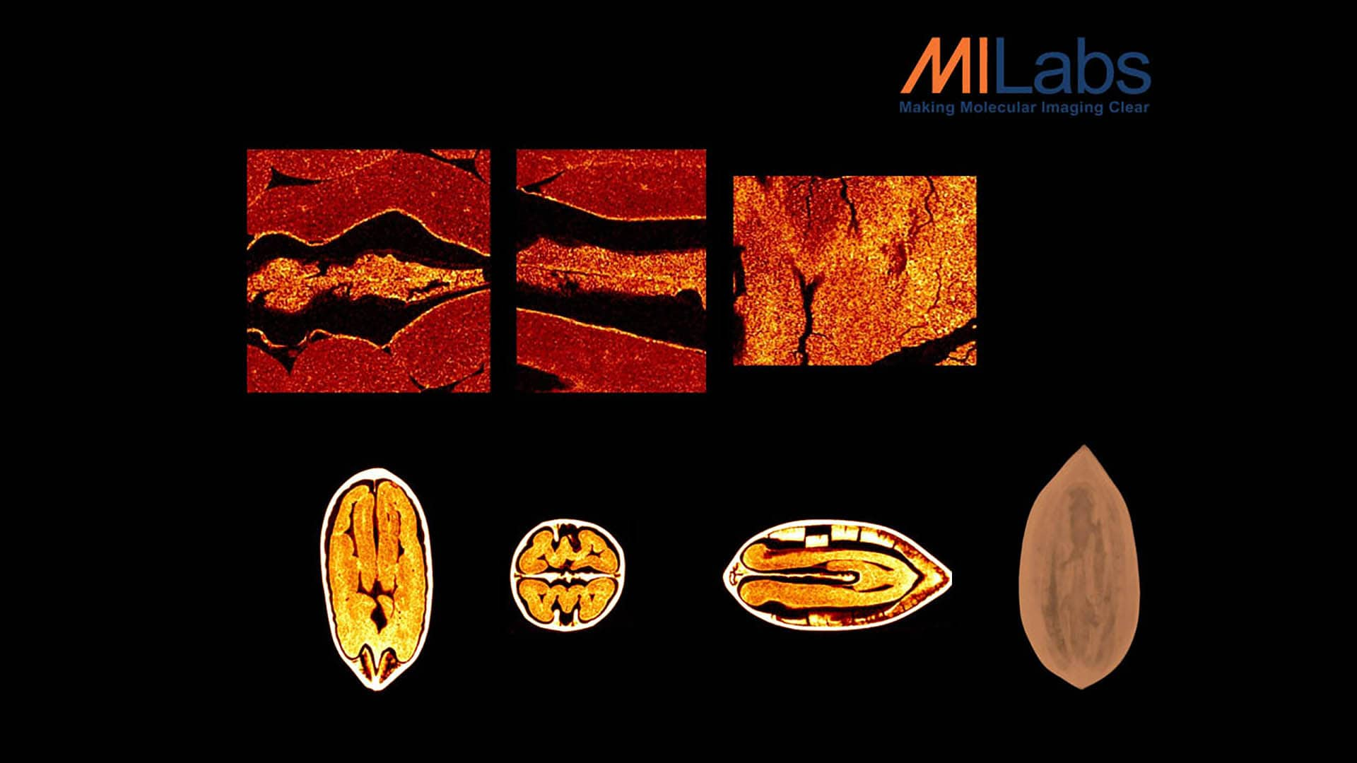 micro-CT imaging of nuts