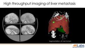 microCT, Micro-CT, preclinical CT, preclinical sheep liver, sheep liver CT, sheep liver tumor