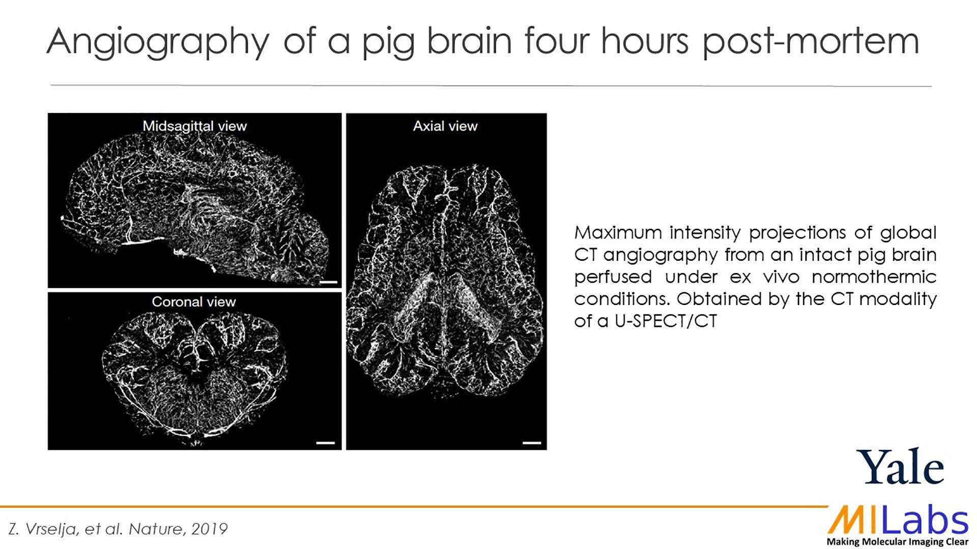 angiography of pig brain post mortem