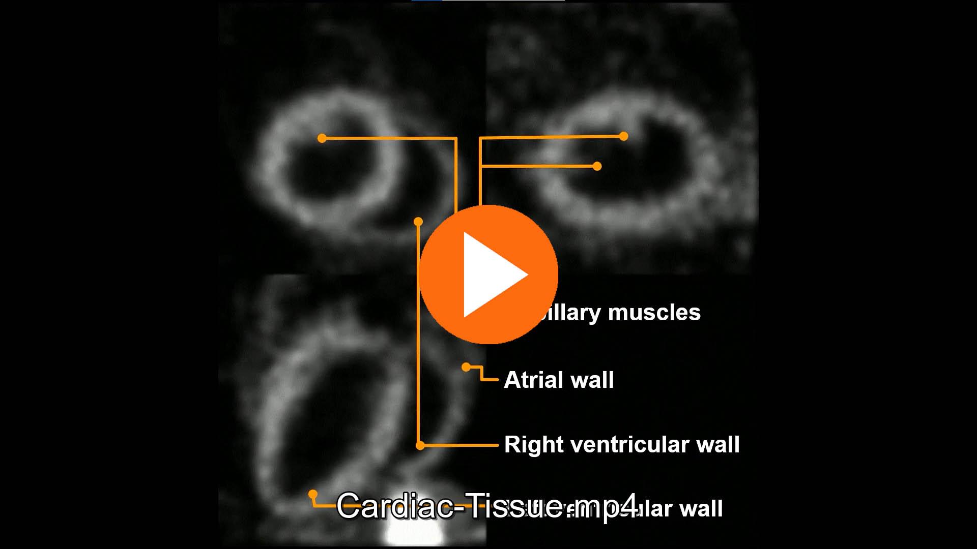 micro-SPECT preclinical cardiac tissue imaging