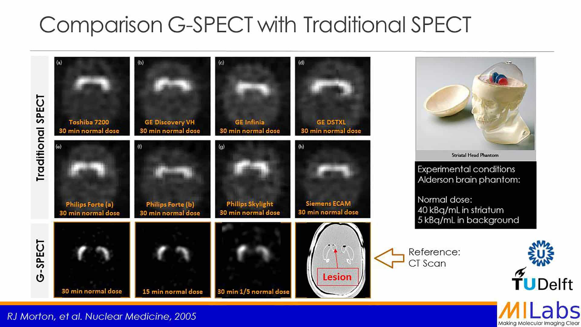 comparison of GSPECT imaging with traditional SPECT
