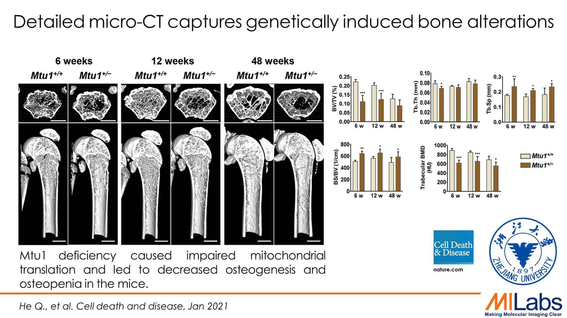 detailed microCT captures genetically induced bone alterations