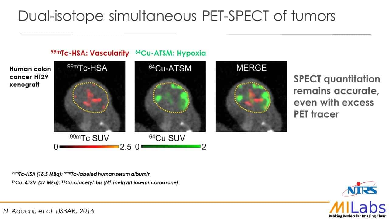 dual isotope simultaneous PET SPECT of tumors in vivo