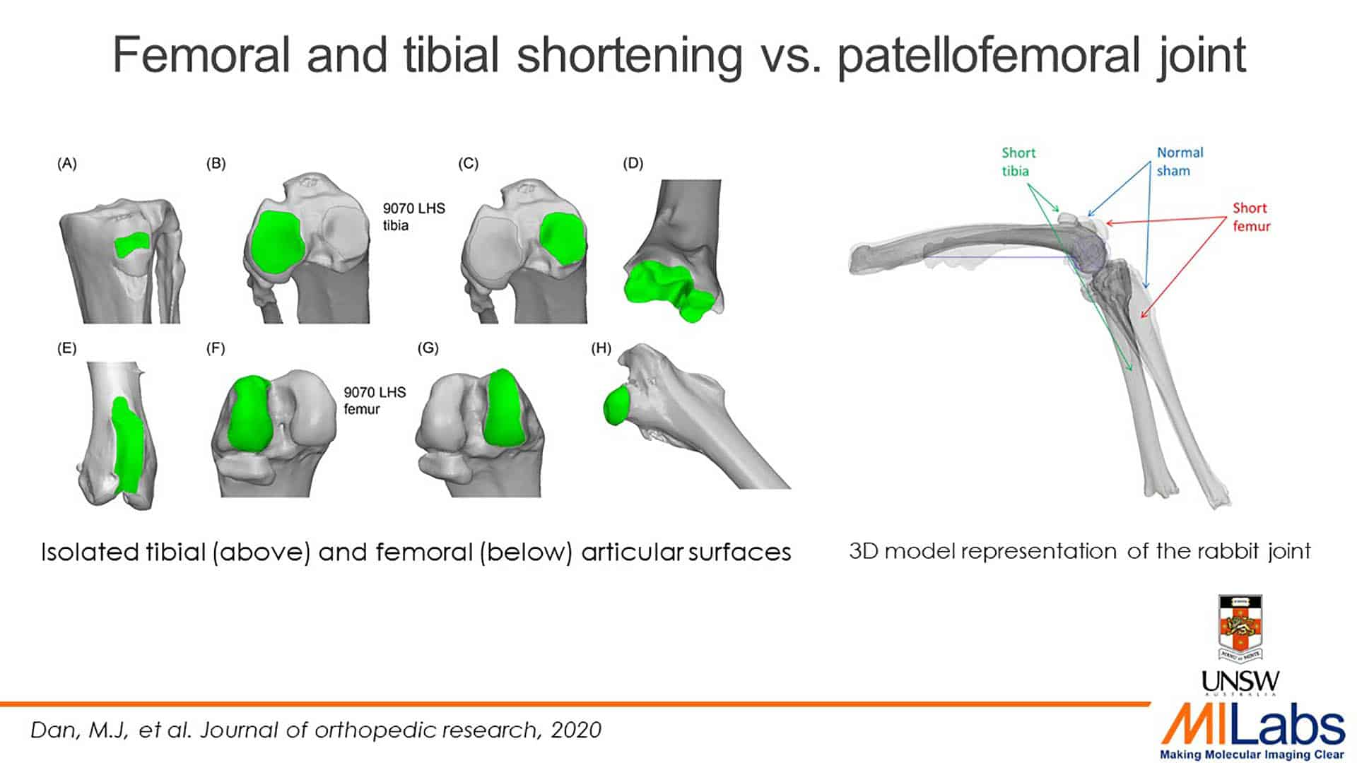 femoral and tibial shortening patellofemoral joint