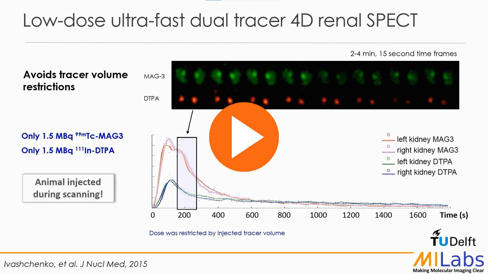 Low-Dose-Ultra-Fast-Dual-Tracer-4D-Renal-Spect