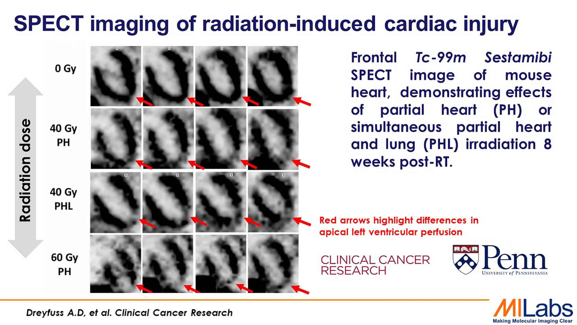 micro spect imaging of radiation induced cardiac injury in mouse
