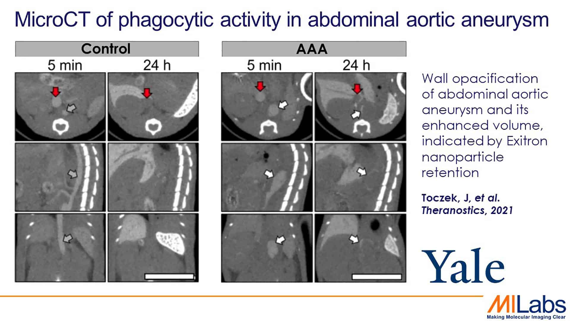 microCT phagocystic activity in abdominal aortic aneurism