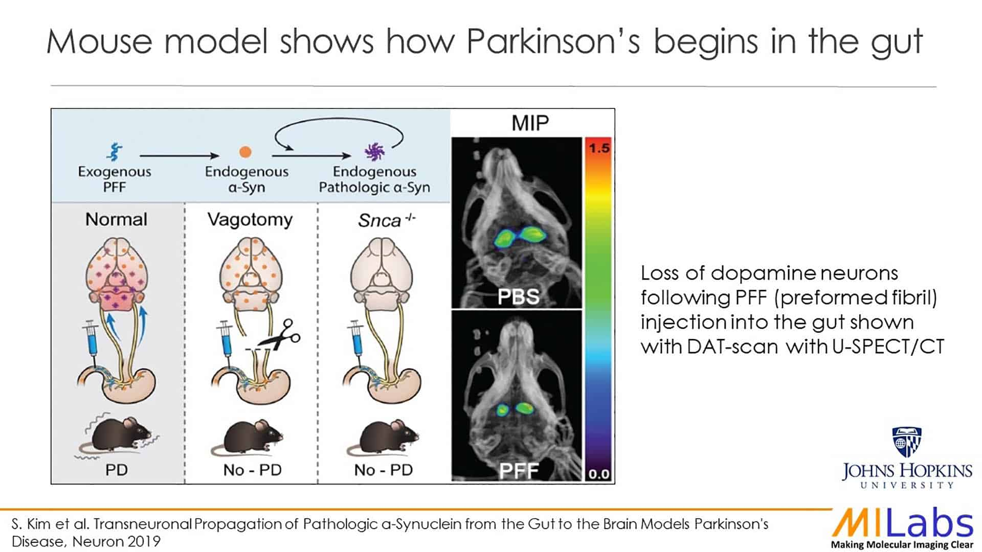 mouse model shows how Parkinson begins in the gut