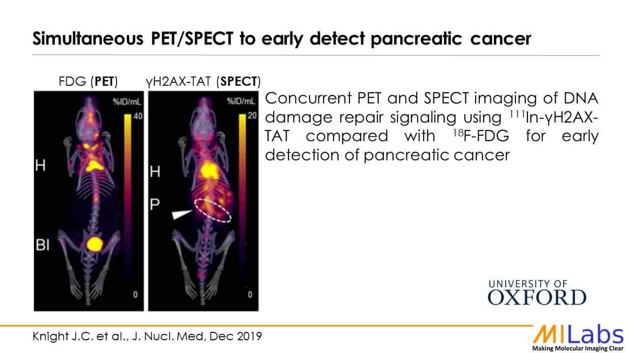 simultaneous PET SPECT to early detect pancreatic cancer